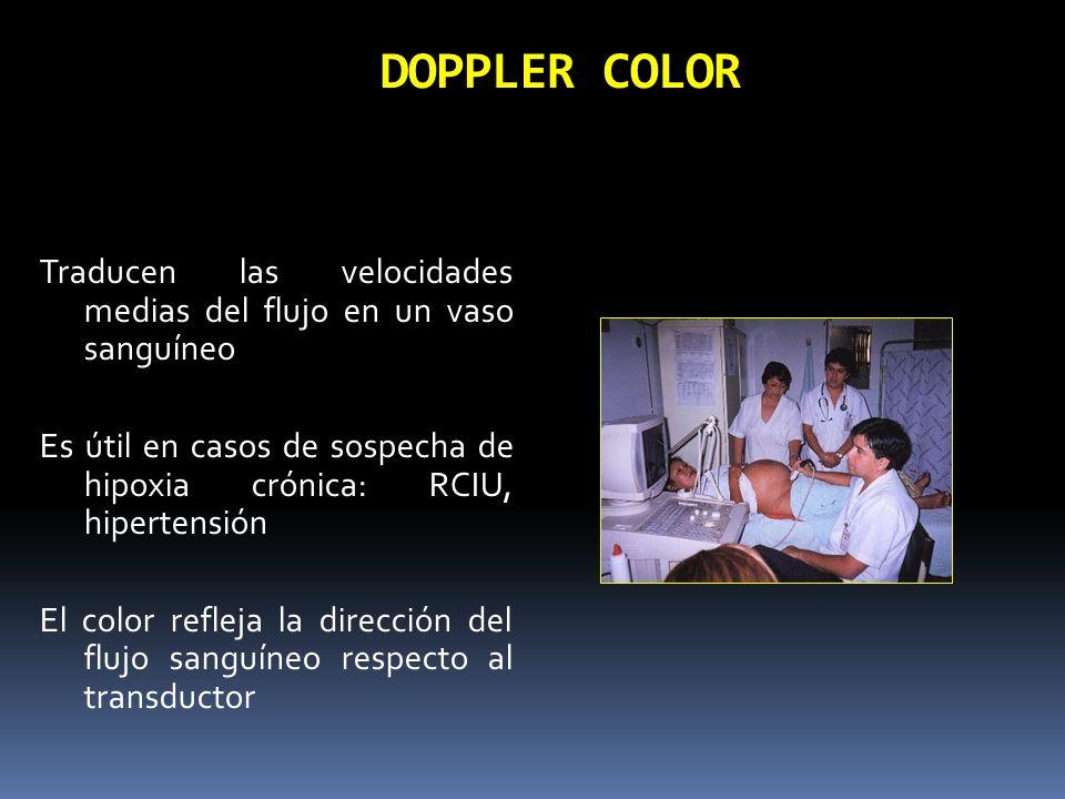 DOPPLER COLORTraducen las velocidades medias del flujo en un vaso sanguíneo. Es útil en casos de sospecha de hipoxia crónica: RCIU, hipertensión.