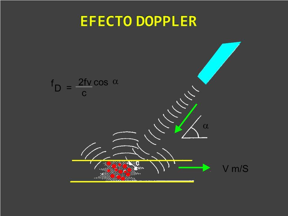 EFECTO DOPPLER a V m/S D f = 2fv cos c