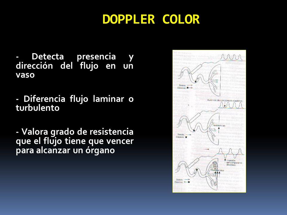 DOPPLER COLOR - Detecta presencia y dirección del flujo en un vaso