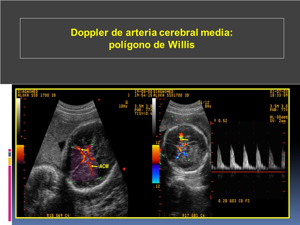 Doppler de arteria cerebral media: