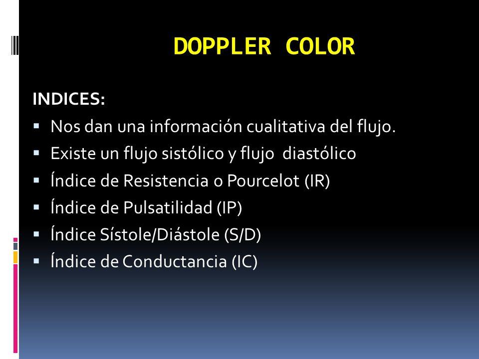 DOPPLER COLOR INDICES: Nos dan una información cualitativa del flujo.