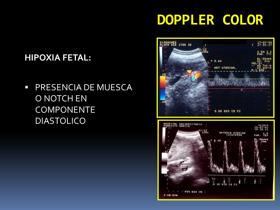 DOPPLER COLOR HIPOXIA FETAL: