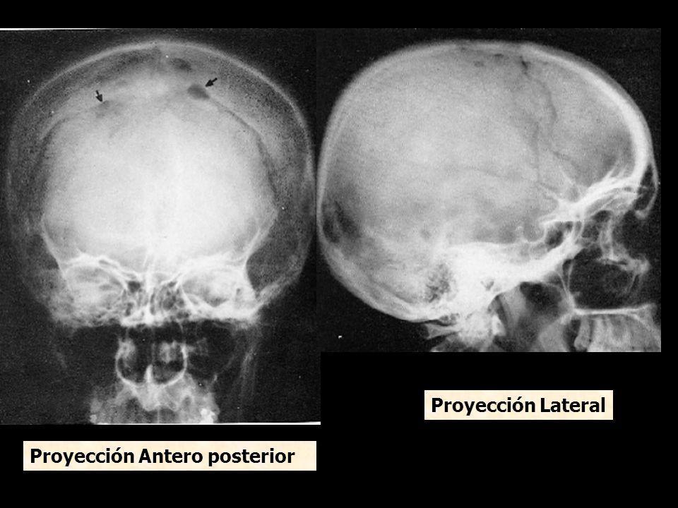 Proyección Lateral Proyección Antero posterior