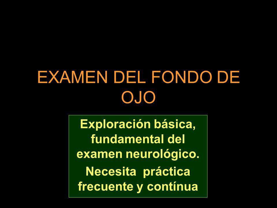 EXAMEN DEL FONDO DE OJO Exploración básica, fundamental del examen neurológico.