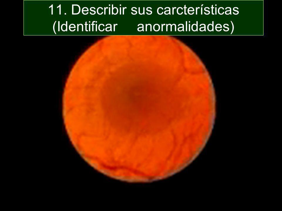 11. Describir sus carcterísticas (Identificar anormalidades)