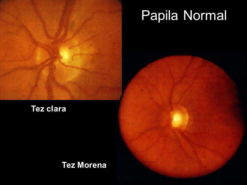 Papila Normal Tez clara Tez Morena