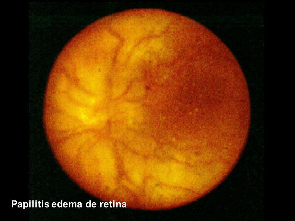 Papilitis edema de retina