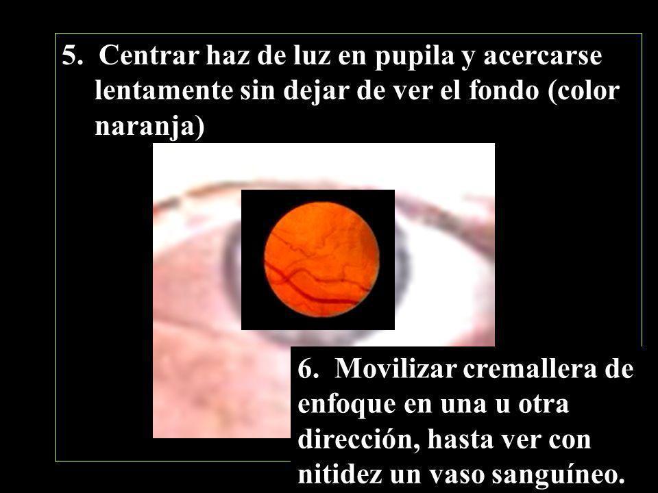 5. Centrar haz de luz en pupila y acercarse lentamente sin dejar de ver el fondo (color naranja)