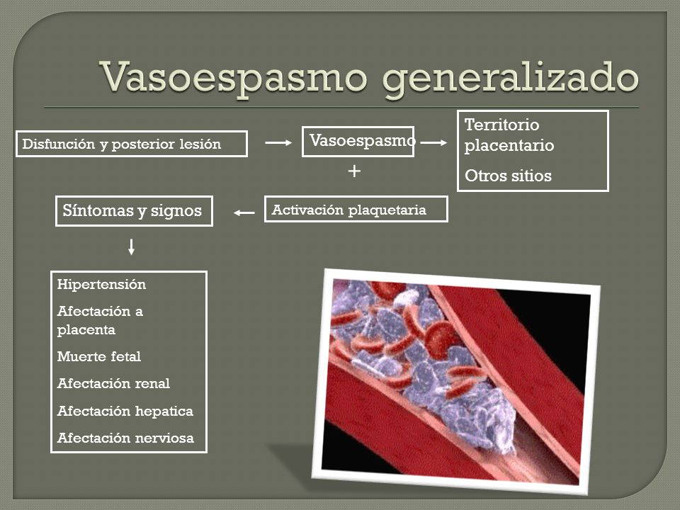 Vasoespasmo generalizado