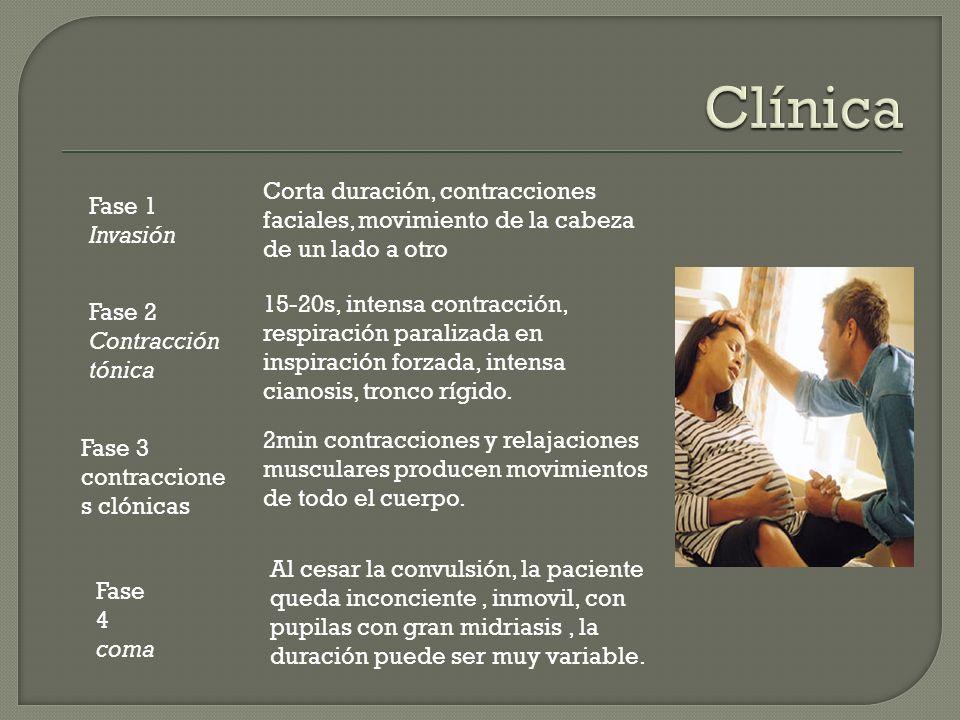 Clínica Corta duración, contracciones faciales, movimiento de la cabeza de un lado a otro. Fase 1 Invasión.