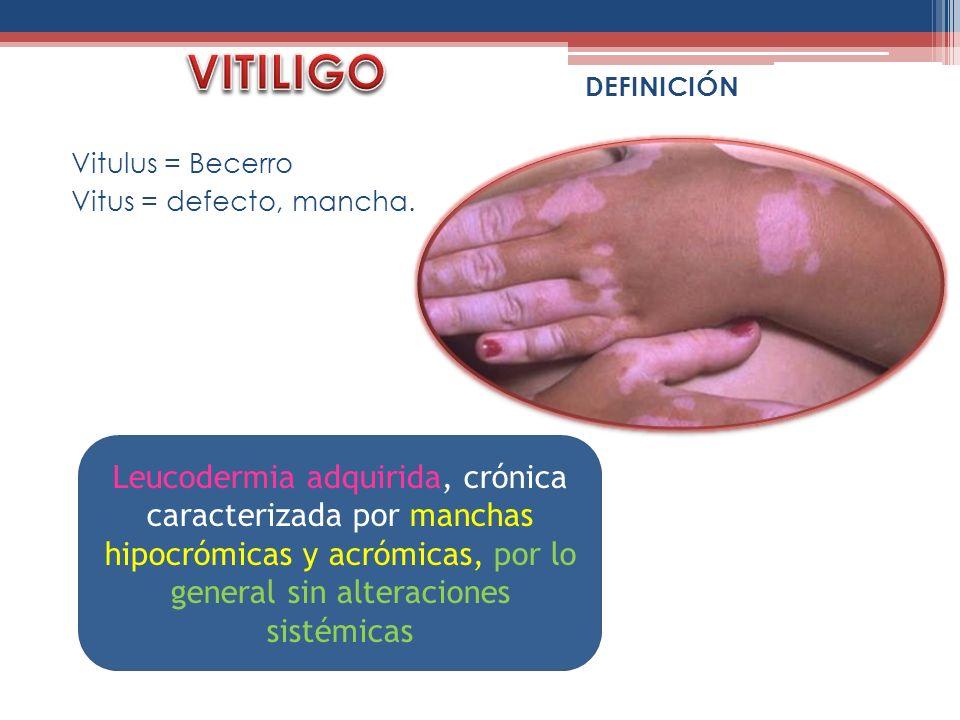 VITILIGODEFINICIÓN. Vitulus = Becerro. Vitus = defecto, mancha.