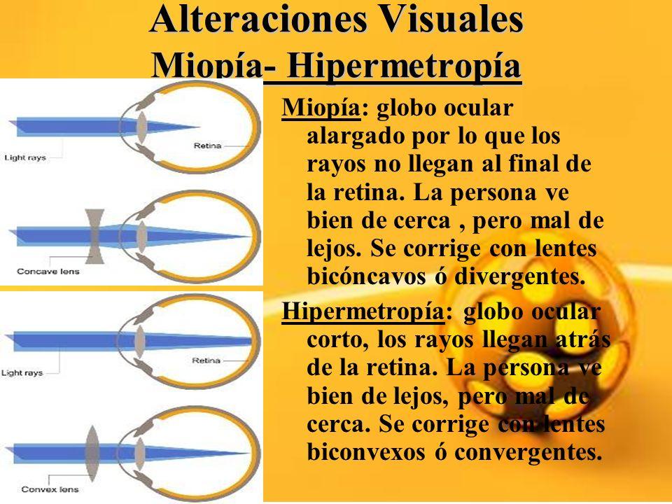 Alteraciones Visuales Miopía- Hipermetropía