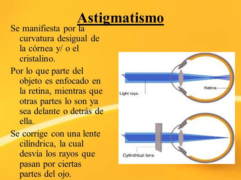 AstigmatismoSe manifiesta por la curvatura desigual de la córnea y/ o el cristalino.