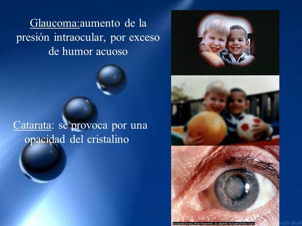 Glaucoma:aumento de la presión intraocular, por exceso de humor acuoso
