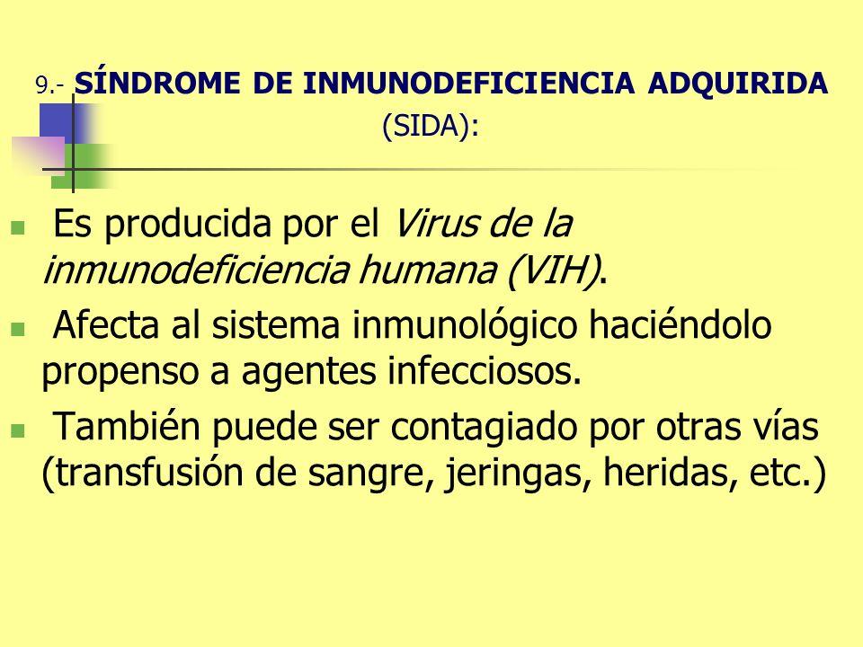 9.- SÍNDROME DE INMUNODEFICIENCIA ADQUIRIDA (SIDA):