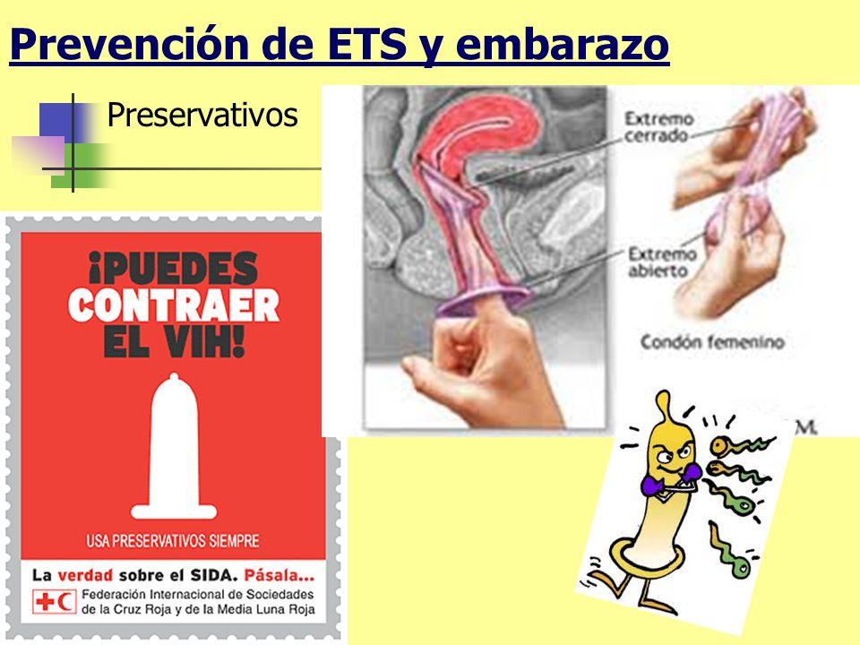 Prevención de ETS y embarazo