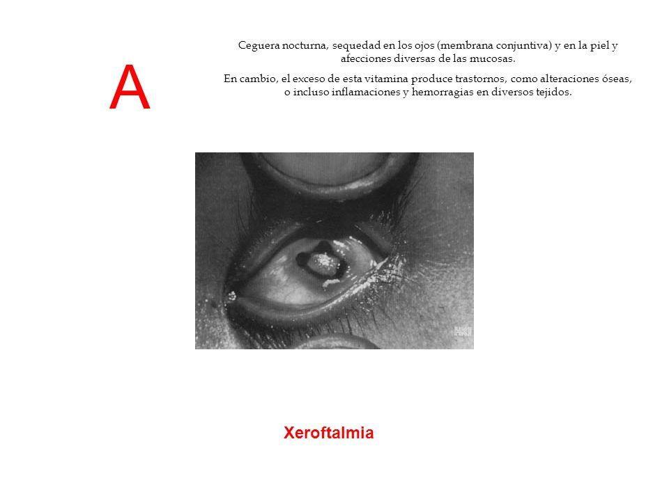 Ceguera nocturna, sequedad en los ojos (membrana conjuntiva) y en la piel y afecciones diversas de las mucosas.