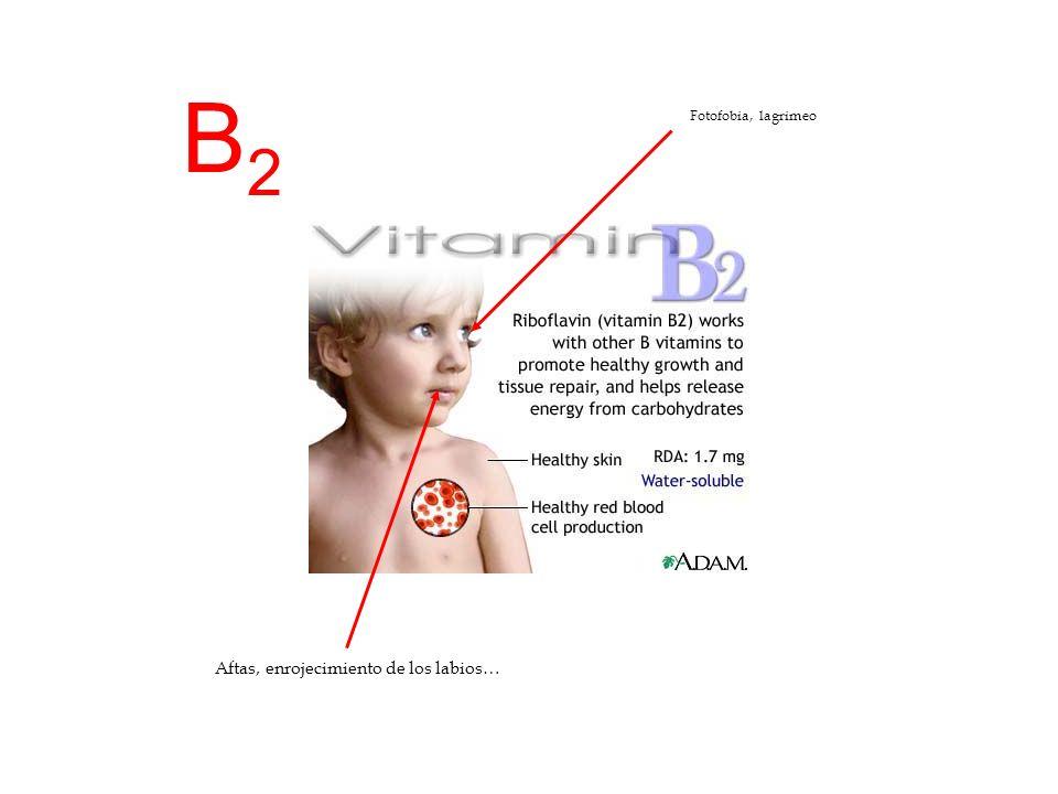 B2 Fotofobia, lagrimeo Aftas, enrojecimiento de los labios…