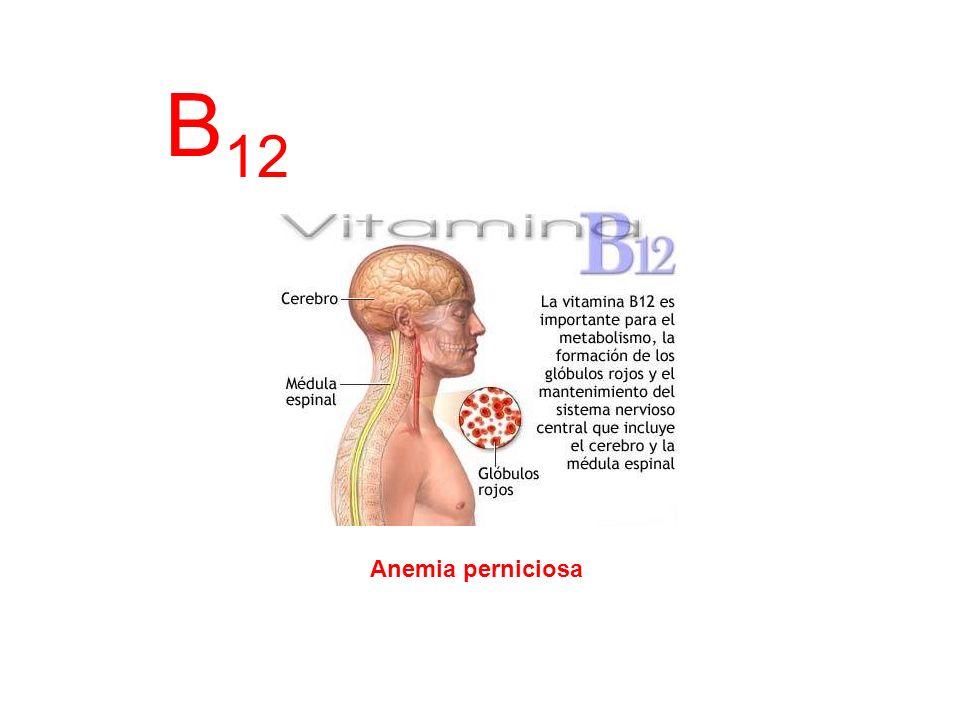 B12 Anemia perniciosa