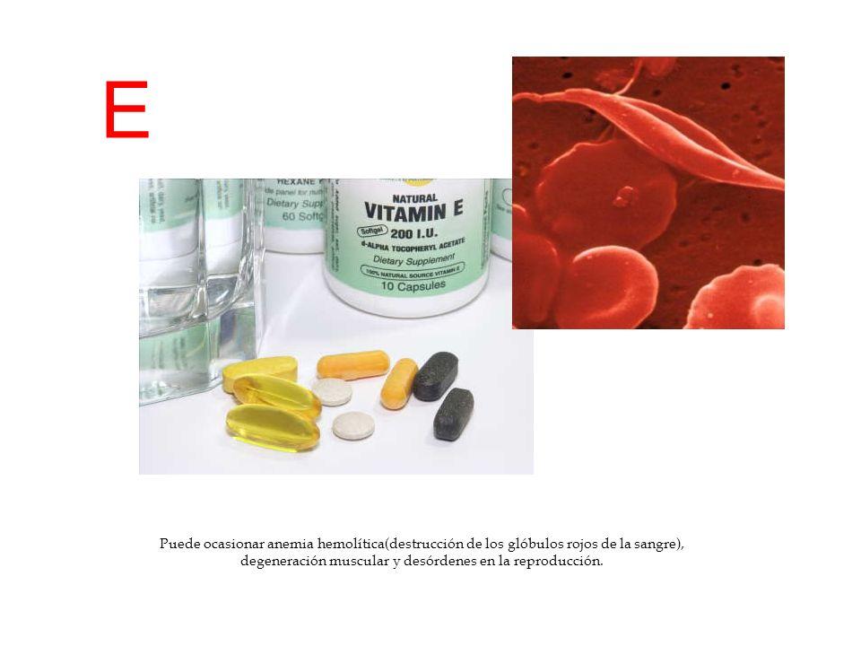 E Puede ocasionar anemia hemolítica(destrucción de los glóbulos rojos de la sangre), degeneración muscular y desórdenes en la reproducción.