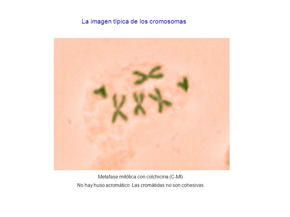 La imagen típica de los cromosomas