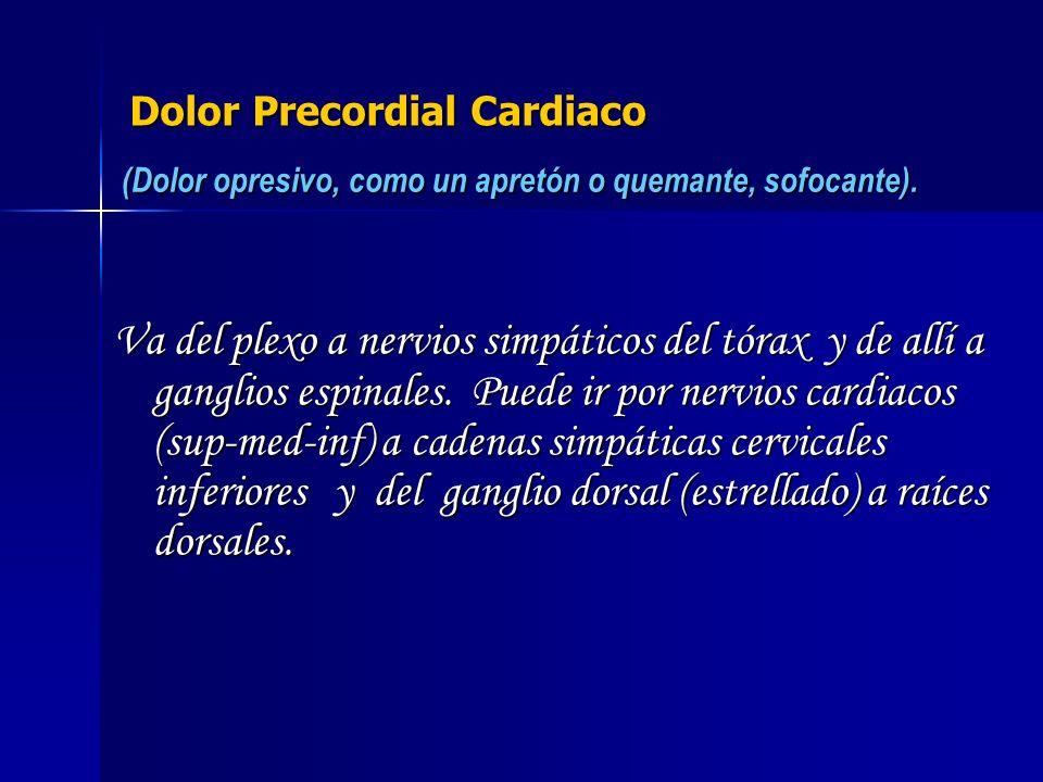 Dolor Precordial Cardiaco