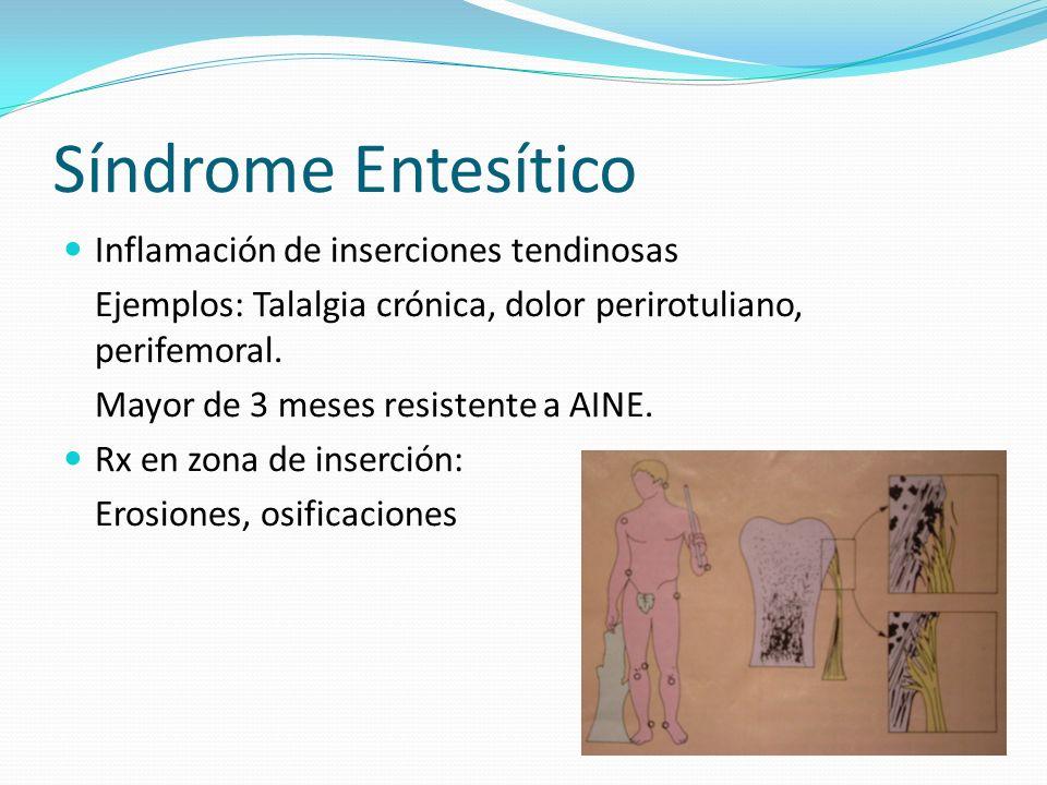 Síndrome Entesítico Inflamación de inserciones tendinosas