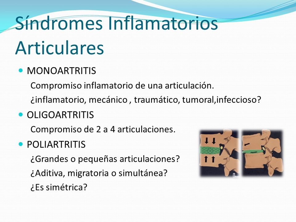 Síndromes Inflamatorios Articulares