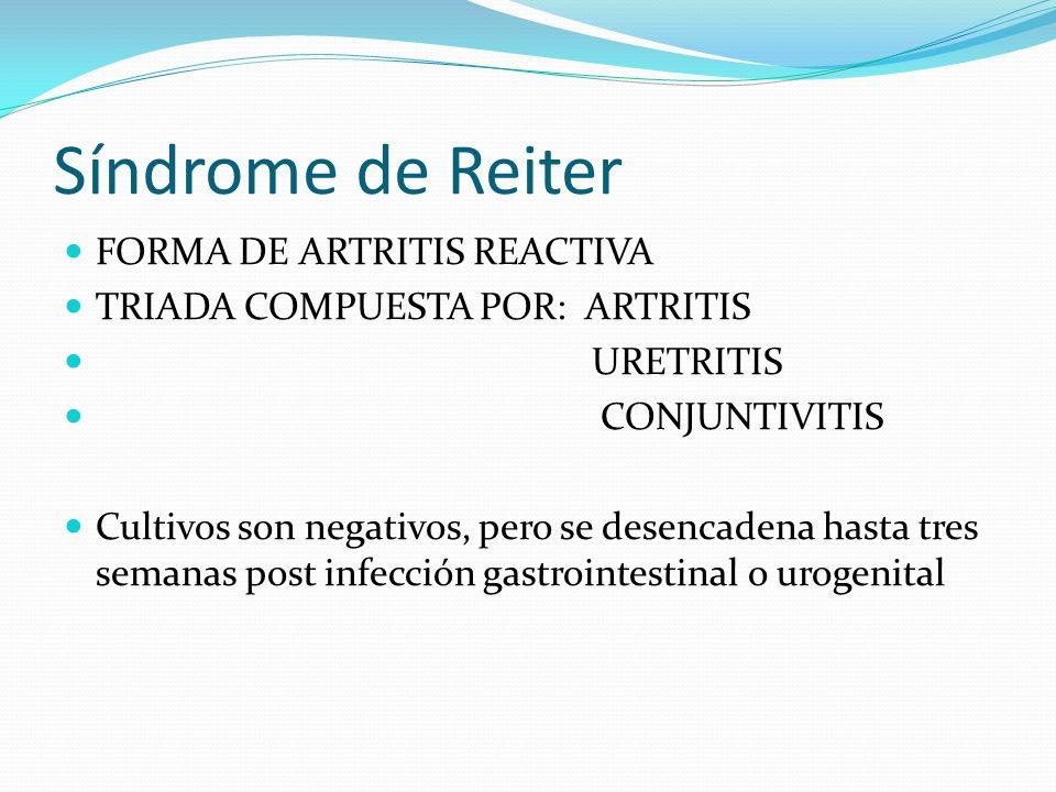 Síndrome de Reiter FORMA DE ARTRITIS REACTIVA