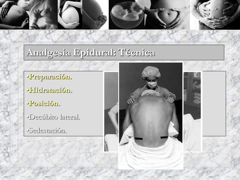 Analgesia Epidural: Técnica