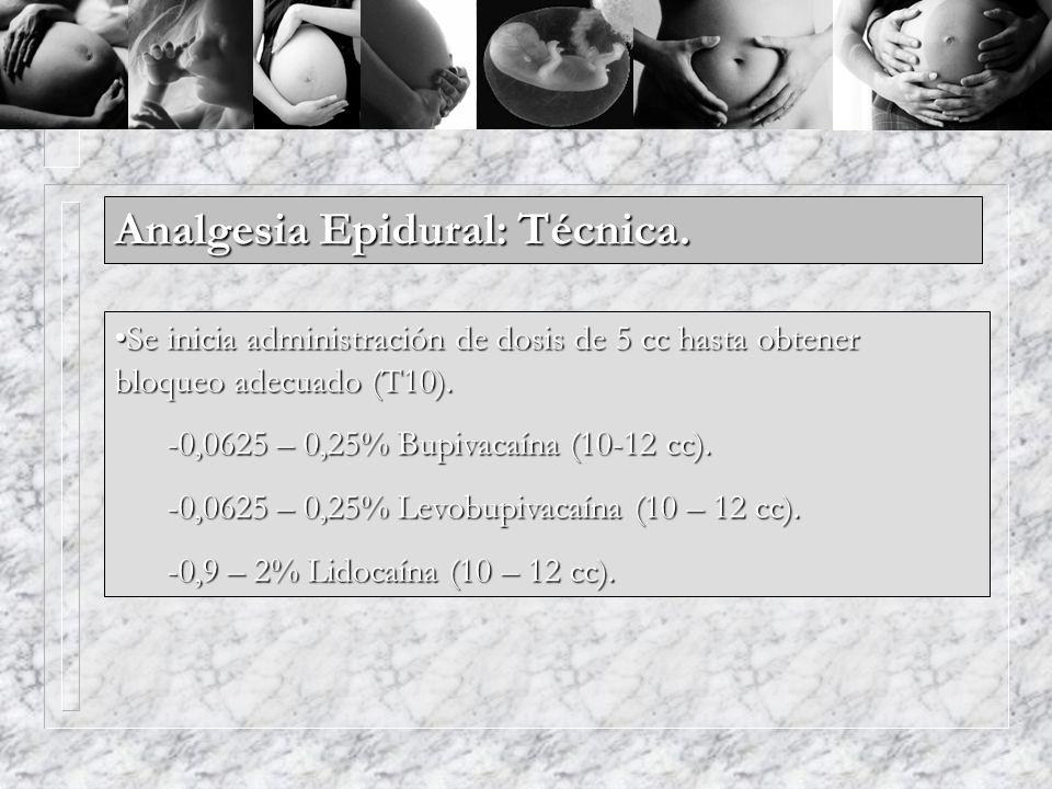 Analgesia Epidural: Técnica.