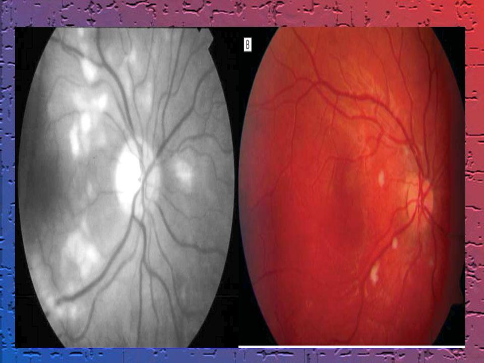 Alteraciones visuales: En un 50% de los casos se afecta la retina por depósito