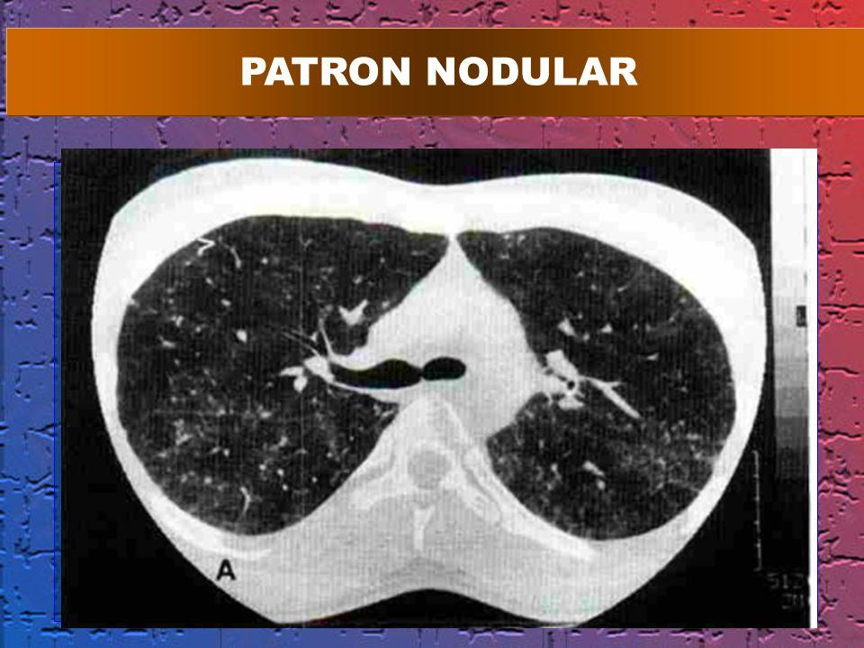 PATRON NODULAR 1 2 MM