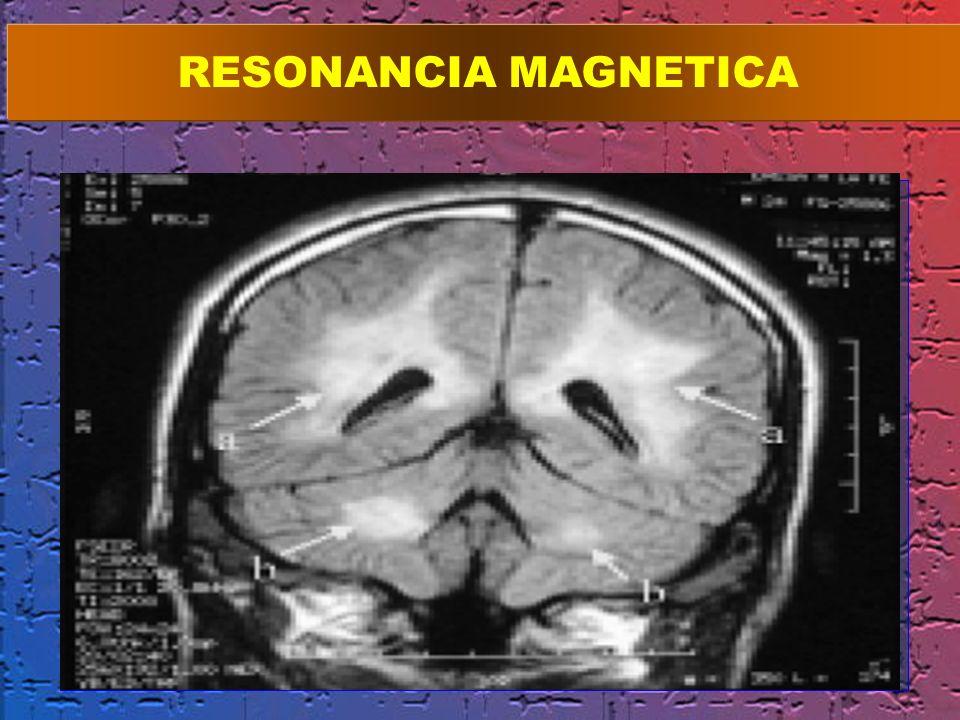 RESONANCIA MAGNETICA ig. 1. RM cerebral. Corte coronal. (Técnica FLAIR). Las flechas señalan.