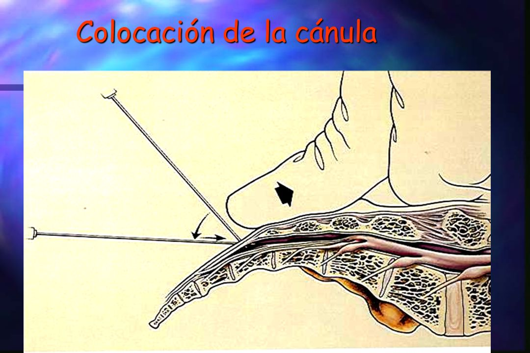 Colocación de la cánula