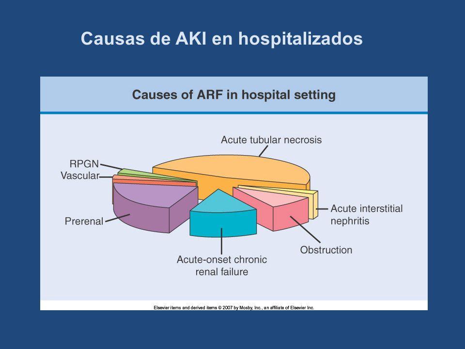 Causas de AKI en hospitalizados