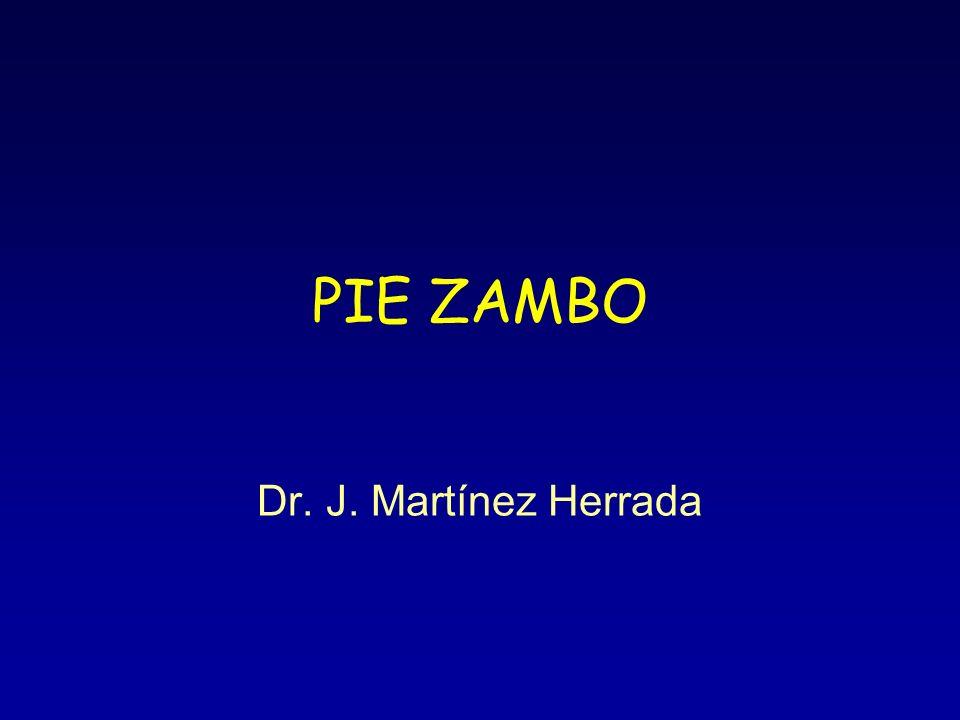 PIE ZAMBO Dr. J. Martínez Herrada
