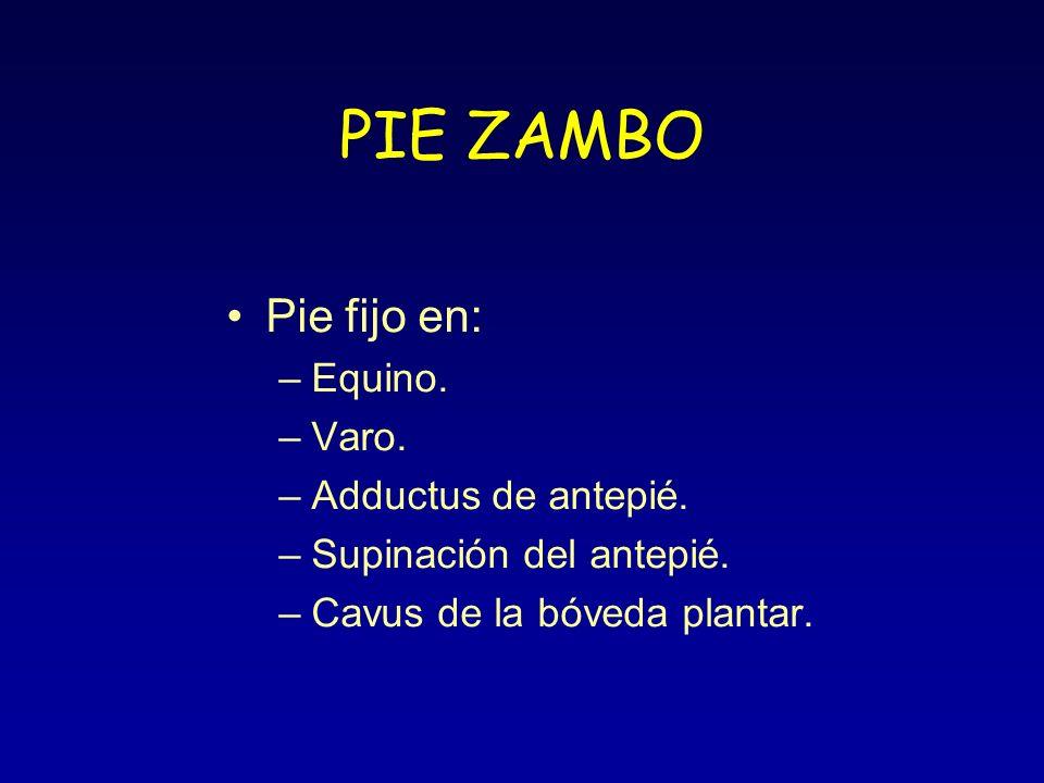 PIE ZAMBO Pie fijo en: Equino. Varo. Adductus de antepié.