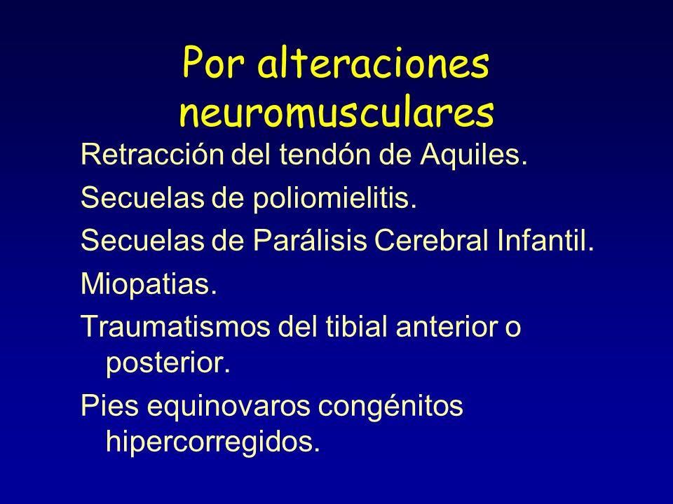 Por alteraciones neuromusculares