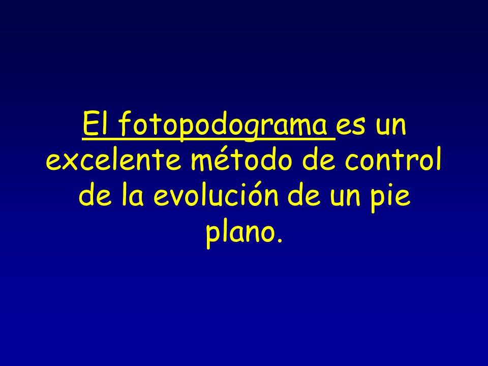 El fotopodograma es un excelente método de control de la evolución de un pie plano.