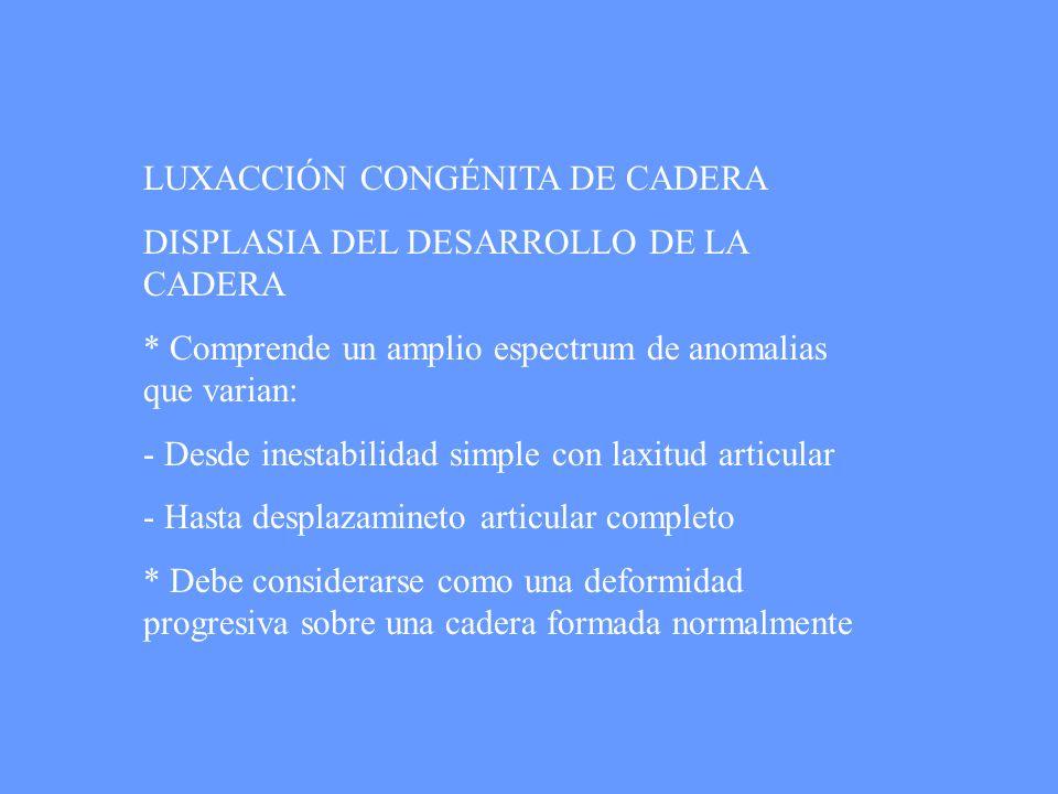 LUXACCIÓN CONGÉNITA DE CADERA