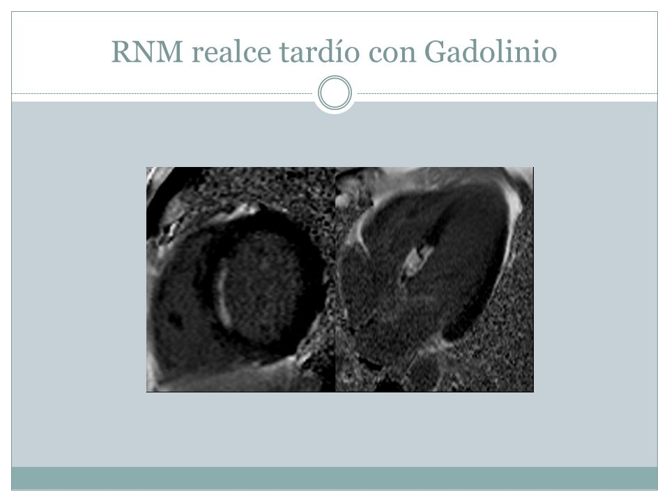 RNM realce tardío con Gadolinio