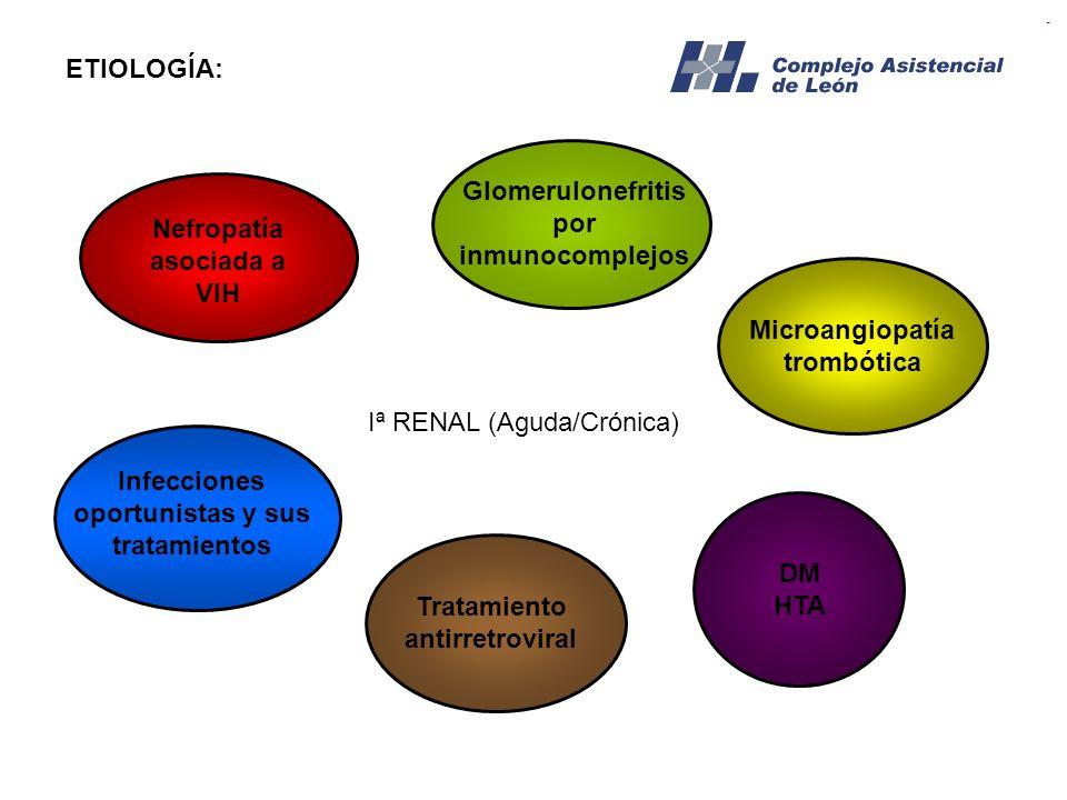 Glomerulonefritis por inmunocomplejos Nefropatía asociada a VIH