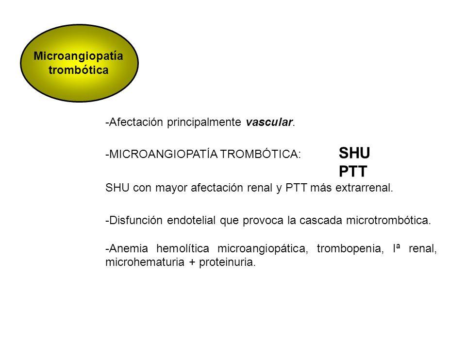Microangiopatía trombótica