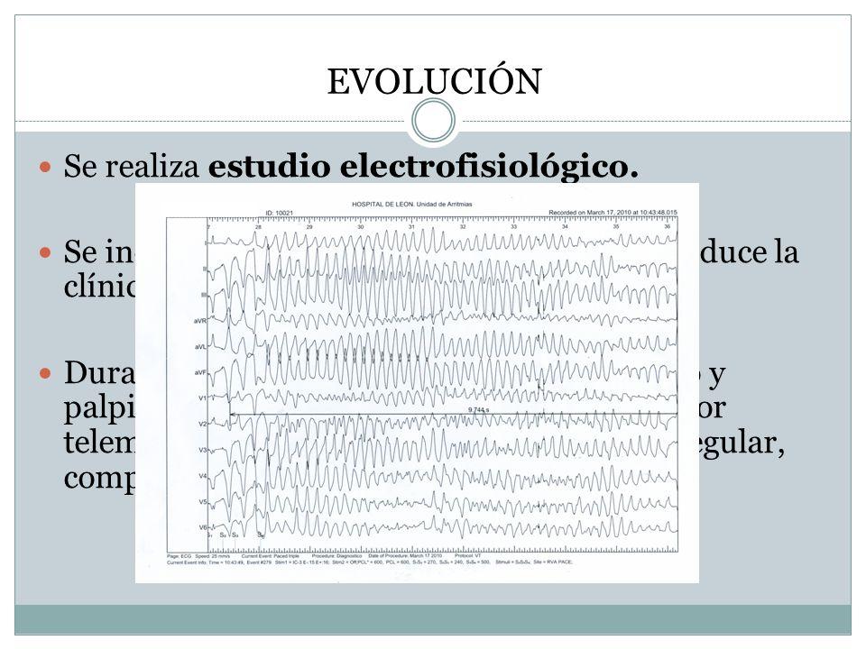 EVOLUCIÓN Se realiza estudio electrofisiológico.