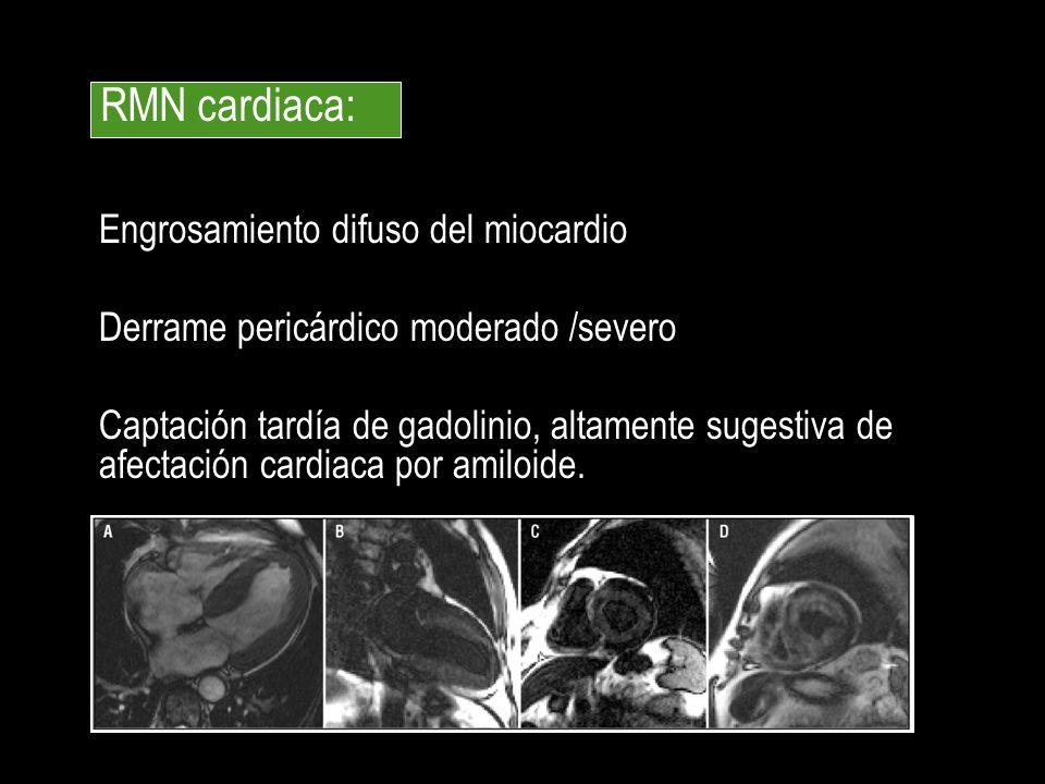 Engrosamiento difuso del miocardio