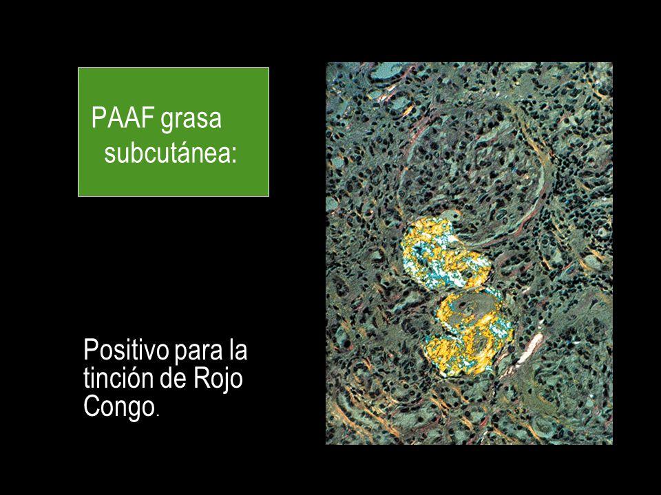 PAAF grasa subcutánea: Positivo para la tinción de Rojo Congo.
