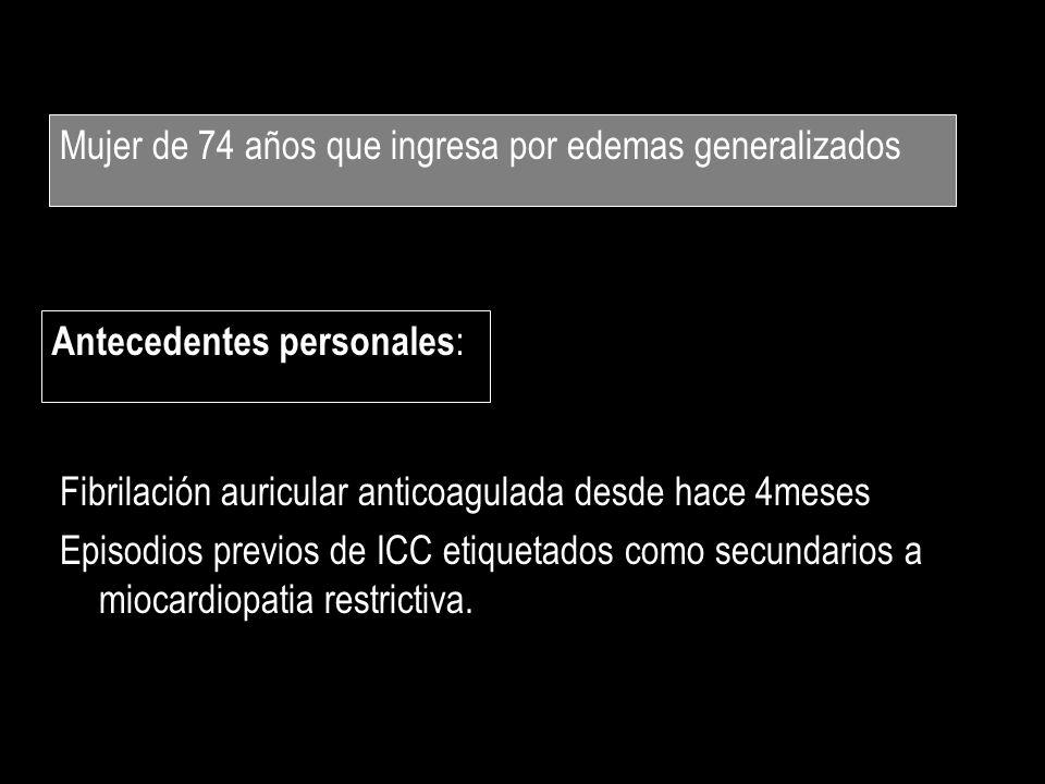 Mujer de 74 años que ingresa por edemas generalizados