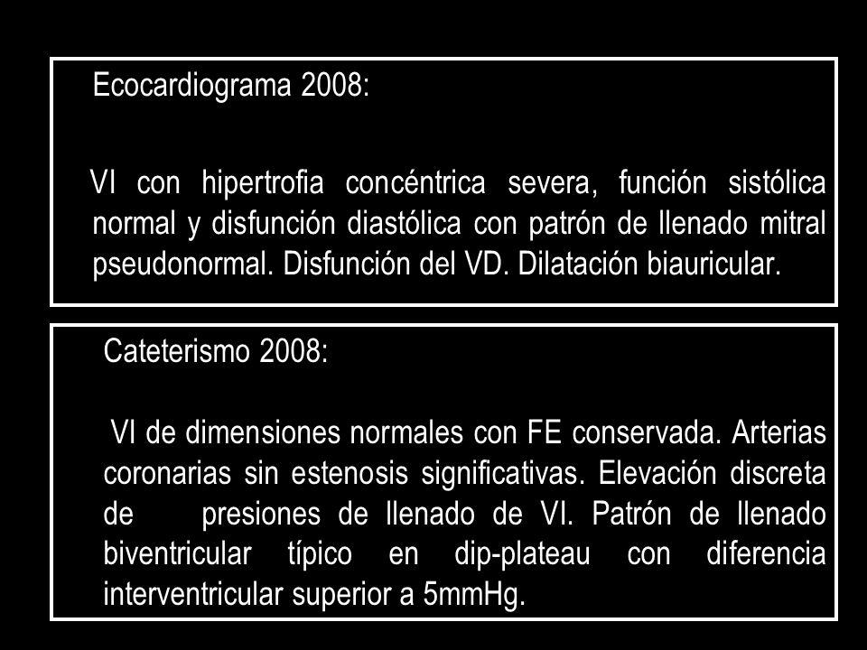 Ecocardiograma 2008: