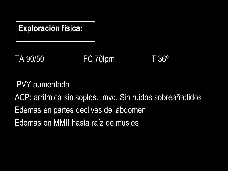 Exploración física: TA 90/50 FC 70lpm T 36º. PVY aumentada. ACP: arrítmica sin soplos. mvc. Sin ruidos sobreañadidos.